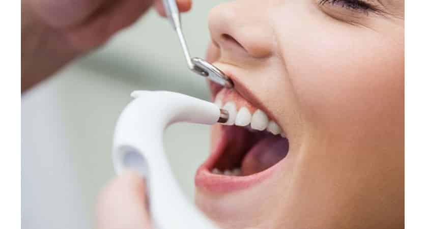 disadvantages of deep cleaning teeth