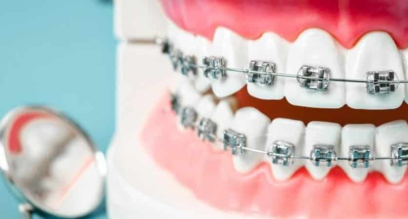 orthodontist near me for adults